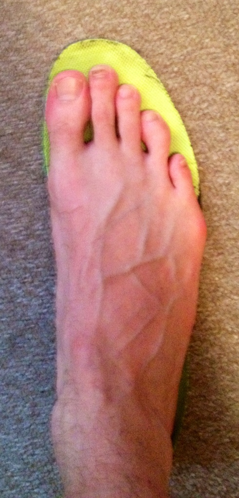 Sore Pinky Toe From Shoes