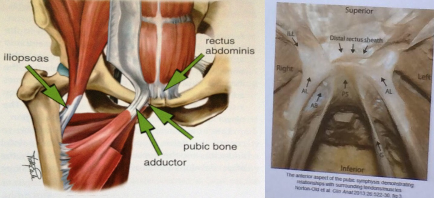 Groin pain, treatment and terminology - by Sam Blanchard | RunningPhysio