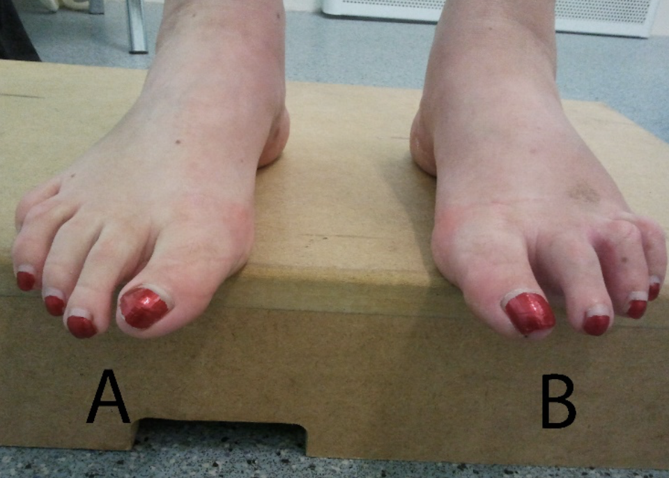 Plantar plate injury assessment and management by nick knight edge test as to relaxed stance this shows a non functioning reverse windlass mechanism which could be indicative of a plantar plate rupture9 publicscrutiny Image collections